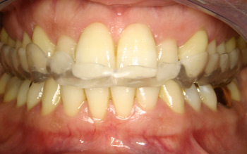 CMD Funktionsdiagnostik + Funktionstherapie Zahnarzt Dr. Alexander Oberle MSc