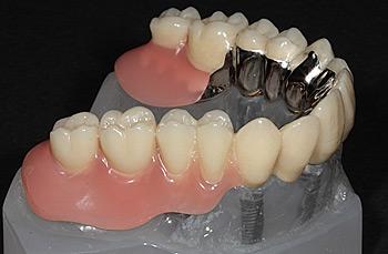 Implantate Zahnarzt Dr. Alexander Oberle MSc