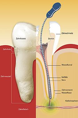 Zahn-Wurzelbehandlung Zahnarzt Dr. Alexander Oberle MSc