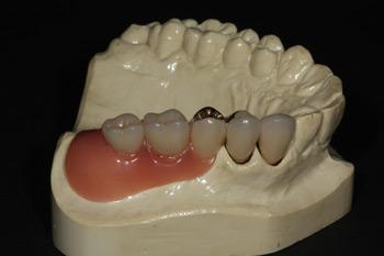 Zahnersatz Zahnarzt Dr. Alexander Oberle MSc