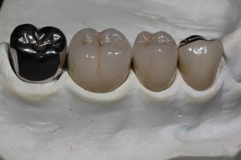 Zahnkronen Zahnarzt Dr. Alexander Oberle MSc