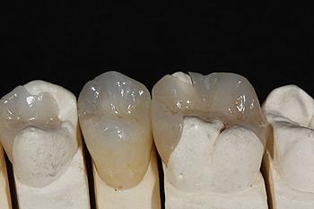Zahnfuellungen Zahnarzt Dr. Alexander Oberle MSc
